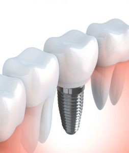 dental implants sans ouvrir